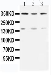 /antibody/pa1784-1-WB-anti-atm-antibody.jpg