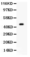 Anti- AURKA antibody, PA1785, Western blotting<br>All lanes: Anti AURKA (PA1785) at 0.5ug/ml<br>WB: Mouse Ovary Tissue Lysate at 50ug<br>Predicted bind size: 46KD<br>Observed bind size: 46KD