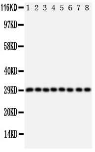 /antibody/pa1786-1-WB-anti-cish-cis-1-antibody.jpg