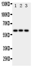 /antibody/pa1787-1-WB-anti-hexa-hexosaminidase-a-antibody.jpg