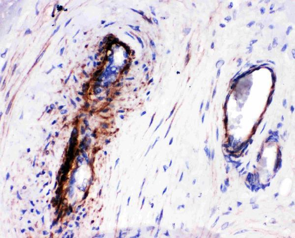 Anti-LASP1 antibody, PA1791-1, IHC(P)<br>IHC(P): Human Placenta Tissue