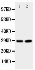 Anti-PRNP antibody, PA1795, Western blotting<br>All lanes: Anti PRNP (PA1795) at 0.5ug/ml<br> Lane 1: Rat Brain Tissue Lysate at 50ug<br> Lane 2: Rat Brain Tissue Lysate at 50ug<br> Predicted bind size: 28KD<br> Observed bind size: 28KD