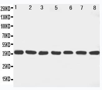 Anti-MEK6 antibody, PA1921, Western blotting<br>Lane 1: Rat Ovary Tissue Lysate<br>Lane 2: Rat Spleen Tissue Lysate<br>Lane 3: Rat Brain Tissue Lysate<br>Lane 4: Rat Heart Tissue Lysate<br>Lane 5: NIH3I3 Cell Lysate<br>Lane 6: HELA Cell Lysate<br>Lane 7: JRUKAT Cell Lysate <br>Lane 8: MCF-7 Cell Lysate