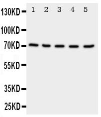 Anti-NRG1 antibody, PA1969, Western blotting<br>Lane 1: Rat Spleen Tissue Lysate<br>Lane 2: Rat Kidney Tissue Lysate<br>Lane 3: Rat Brain Tissue Lysate<br>Lane 4: HELA Cell Lysate<br>Lane 5: SMMC Cell Lysate<br>