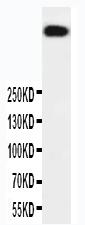 Anti-DNA PKcs antibody, PA1970, Western blotting