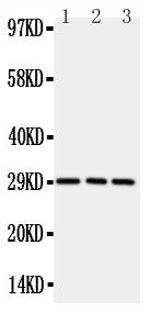 Anti-CD134/OX40 antibody, PA2136-3, Western blotting<br>All lanes: Anti CD134/OX40 (PA2136-3) at 0.5ug/ml<br>Lane 1: Rat Brain Tissue Lysate at 50ug<br>Lane 2: Rat Liver Tissue Lysate at 50ug<br>Lane 3: Rat Kidney Tissue Lysate at 50ug<br>Predicted bind size: 29KD<br>Observed bind size: 29KD