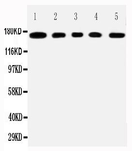 Anti-MUC1 antibody, PA2302, All Western blotting<br>All lanes: Anti-MUCIN1(PA2302) at 0.5ug/ml<br> Lane 1: COLO320 Whole Cell Lysate at 40ug<br> Lane 2: SW620 Whole Cell Lysate at 40ug<br> Lane 3: HEPG2 Whole Cell Lysate at 40ug<br> Lane 4: MCF-7 Whole Cell Lysate at 40ug<br> Lane 5: JURKAT Whole Cell Lysate at 40ug<br> Predicted bind size: 122KD<br> Observed bind size: 170KD