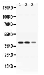 Western blot analysis of ADH4 expression in rat liver extract (lane 1), mouse liver extract (lane 2) and HEPG2 whole cell lysates (lane 3). ADH4 at 40KD was detected using rabbit anti- ADH4 Antigen Affinity purified polyclonal antibody (Catalog # PB10030) at 0.5 ??g/mL. The blot was developed using chemiluminescence (ECL) method (Catalog # EK1002).