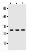 Anti- Adiponectin antibody, PB9001,Western blotting<br>All lanes: Anti Adiponectin (PB9001) at 0.5ug/ml<br> Lane 1: Human Placenta Tissue Lysate at 50ug<br> Lane 2: HELA Whole Cell Lysate at 40ug<br> Lane 3: JURKAT Whole Cell Lysate at 40ug<br> Predicted bind size: 30KD<br> Observed bind size: 30KD