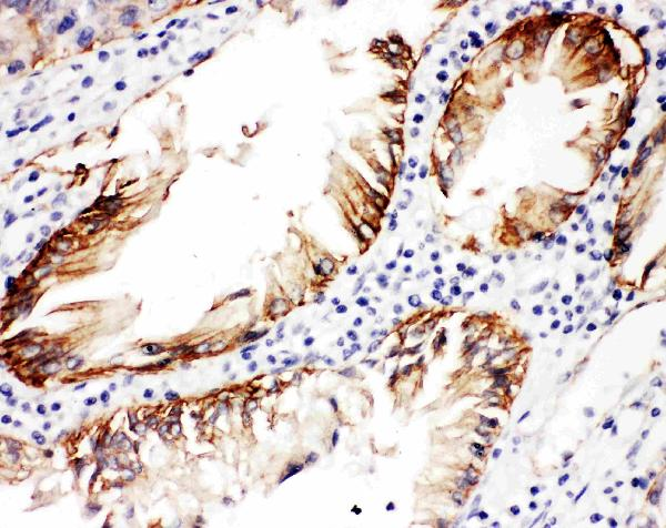Figure 1. IHC analysis of ITGB4 using anti-ITGB4 antibody (PB9007).<br> ITGB4 was detected in paraffin-embedded section of human intestinal cancer tissues. Heat mediated antigen retrieval was performed in citrate buffer (pH6, epitope retrieval solution) for 20 mins. The tissue section was blocked with 10% goat serum. The tissue section was then incubated with 1μg/ml rabbit anti-ITGB4 Antibody (PB9007) overnight at 4°C. Biotinylated goat anti-rabbit IgG was used as secondary antibody and incubated for 30 minutes at 37°C. The tissue section was developed using Strepavidin-Biotin-Complex (SABC)(Catalog # SA1022) with DAB as the chromogen.