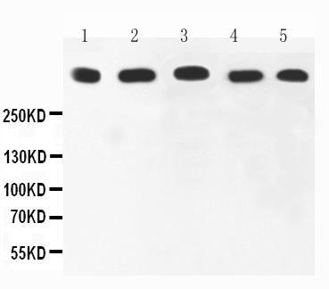 Anti-Ki67 Picoband antibody, PB9026-2.jpg<br>All lanes: Anti-Ki67(PB9026) at 0.5ug/ml<br>Lane 1: HELA Whole Cell Lysate at 40ug<br>Lane 2: MCF-7 Whole Cell Lysate at 40ug <br>Lane 3: COLO320 Whole Cell Lysate at 40ug<br>Lane 4: HEPG2 Whole Cell Lysate at 40ug<br> Lane 5: SKOV Whole Cell Lysate at 40ug<br> Predicted bind size: 358KD<br> Observed bind size: 358KD