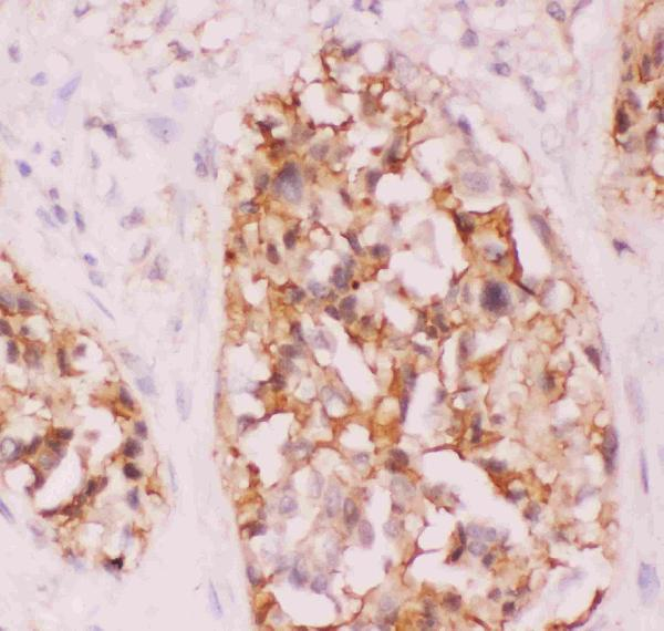 Anti-Crk p38 Picoband antibody, PB9101-5.JPG<br>IHC(P): Human Lung Cancer Tissue