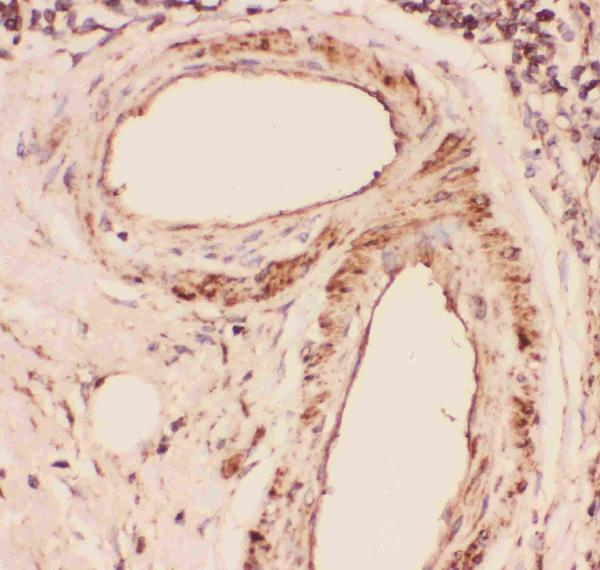 Figure 5. IHC analysis of Desmin using anti-Desmin antibody (PB9105). <br> Desmin was detected in paraffin-embedded section of human intestinal cancer tissues. Heat mediated antigen retrieval was performed in citrate buffer (pH6, epitope retrieval solution) for 20 mins. The tissue section was blocked with 10% goat serum. The tissue section was then incubated with 1μg/ml rabbit anti-Desmin Antibody (PB9105) overnight at 4°C. Biotinylated goat anti-rabbit IgG was used as secondary antibody and incubated for 30 minutes at 37°C. The tissue section was developed using Strepavidin-Biotin-Complex (SABC)(Catalog # SA1022) with DAB as the chromogen.