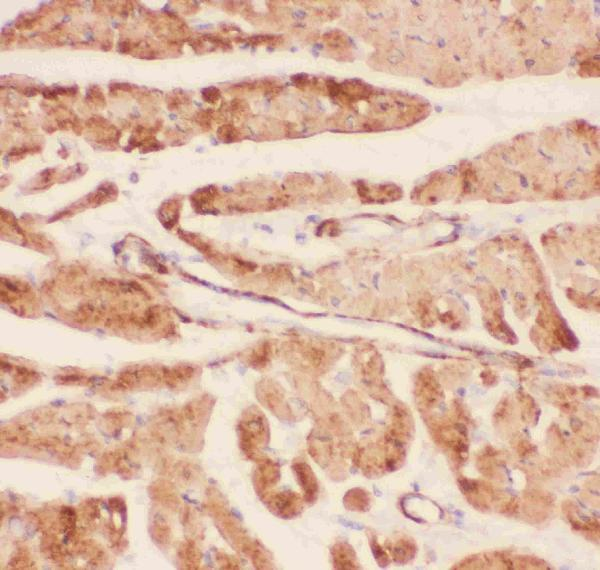 Figure 7. IHC analysis of Desmin using anti-Desmin antibody (PB9105). <br> Desmin was detected in paraffin-embedded section of rat cardiac muscle tissues. Heat mediated antigen retrieval was performed in citrate buffer (pH6, epitope retrieval solution) for 20 mins. The tissue section was blocked with 10% goat serum. The tissue section was then incubated with 1μg/ml rabbit anti-Desmin Antibody (PB9105) overnight at 4°C. Biotinylated goat anti-rabbit IgG was used as secondary antibody and incubated for 30 minutes at 37°C. The tissue section was developed using Strepavidin-Biotin-Complex (SABC)(Catalog # SA1022) with DAB as the chromogen.
