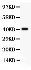 Anti-Tuberin Picoband antibody, PB9121-1.jpg<br>All lanes: Anti Tuberin (PB9121) at 0.5ug/ml<br>WB: Recombinant Human Tuberin Protein 0.5ng<br>Predicted bind size: 41KD<br>Observed bind size: 41KD