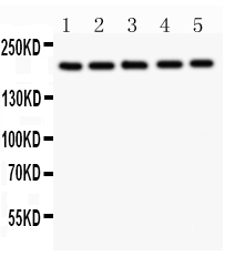 Anti-Tuberin Picoband antibody, PB9121-2.jpg<br>All lanes: Anti Tuberin (PB9121) at 0.5ug/ml<br>Lane 1: U20S Whole Cell Lysate at 40ug<br>Lane 2: PANC Whole Cell Lysate at 40ug<br>Lane 3: HEPG2 Whole Cell Lysate at 40ug<br>Lane 4: A549 Whole Cell Lysate at 40ug<br>Lane 5: COLO320 Whole Cell Lysate at 40ug <br>Predicted bind size: 201KD<br>Observed bind size: 201KD