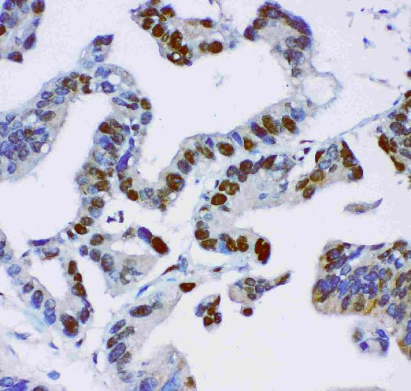 Anti-JunB  antibody, PB9226, IHC(P)<br>IHC(P): Human Intestinal Cancer Tissue