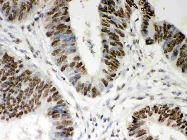 Anti- Nucleophosmin Picoband antibody, PB9341,IHC(P)<br>IHC(P): Human Intestinal Cancer Tissue