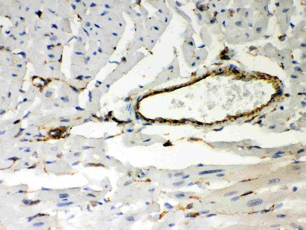 Anti- Vimentin Picoband antibody, PB9359, IHC(P)<br>IHC(P): Mouse Cardiac Muscle Tissue