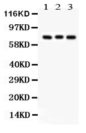 Anti- APG7 Picoband antibody, PB9479, Western blotting<br>All lanes: Anti APG7 (PB9479) at 0.5ug/ml<br>Lane 1: Rat Brain Tissue Lysate at 50ug<br>Lane 2: Mouse Brain Tissue Lysate at 50ug<br>Lane 3: 293T Whole Cell Lysate at 40ug<br>Predicted bind size: 78KD<br>Observed bind size: 78KD
