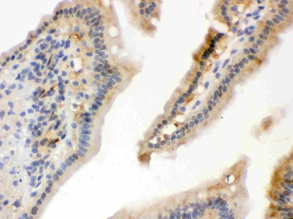 Anti- Hsp70 Picoband antibody, PB9638, IHC(P)<br>IHC(P): Mouse Intestine Tissue