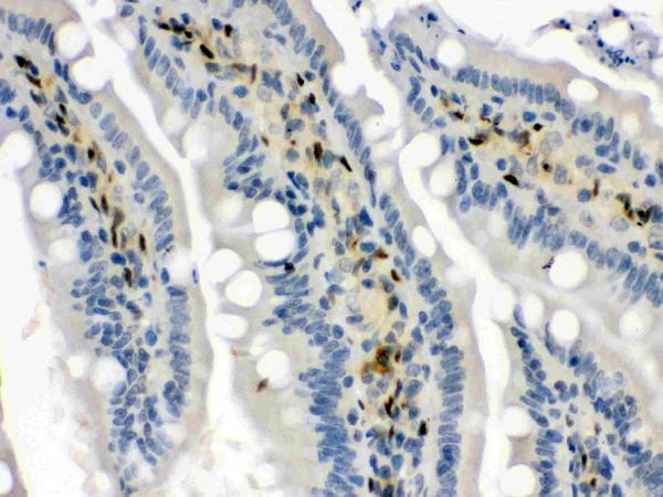 Anti- Hsp70 Picoband antibody, PB9638, IHC(P)<br>IHC(P): Rat Intestine Tissue