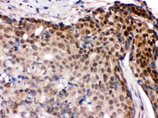 Anti- IRF5 Picoband antibody, PB9646, IHC(P)<br>IHC(P): Human Mammary Cancer Tissue