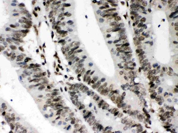 CIITA was detected in paraffin-embedded sections of human intestinal cancer tissues using rabbit anti- CIITA Antigen Affinity purified polyclonal antibody (Catalog # PB9996) at 1 μg/mL. The immunohistochemical section was developed using SABC method (Catalog # SA1022).