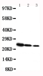Anti-rat Growth Hormone antibody, RP1007, Western blotting<br>Lane 1: Recombinant Rat GH Protein 10ng<br>Lane 2: Recombinant Rat GH Protein 5ng<br>Lane 3: Recombinant Rat GH Protein 2
