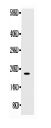 Figure. Western blot analysis of SCF using anti- SCF antibody (RP1010). <br><br> Electrophoresis was performed on a 5-20% SDS-PAGE gel at 70V (Stacking gel) / 90V (Resolving gel) for 2-3 hours. The sample well of each lane was loaded with 50ug of sample under reducing conditions.<br><br> Lane : Recombinant Human SCF Protein 0.5ng,<br><br> After Electrophoresis, proteins were transferred to a Nitrocellulose membrane at 150mA for 50-90 minutes. Blocked the membrane with 5% Non-fat Milk/ TBS for 1.5 hour at RT. The membrane was incubated with rabbit anti- SCF antigen affinity purified polyclonal antibody (Catalog # RP1010) at 0.5 μg/mL overnight at 4°C, then washed with TBS-0.1%Tween 3 times with 5 minutes each and probed with a goat anti-rabbit IgG-HRP secondary antibody at a dilution of 1:10000 for 1.5 hour at RT. The signal is developed using an Enhanced Chemiluminescent detection (ECL) kit (Catalog # EK1002) with Tanon 5200 system. A specific band was detected for SCF at approximately 18KD. The expected band size for SCF is at 18KD.
