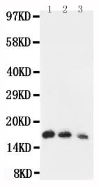 Anti-human IL7 antibody, RP1013, Western blotting<br>Lane 1: Recombinant Human IL-7 Protein 10ng <br>Lane 2: Recombinant Human IL-7 Protein 5ng<br>Lane 3: Recombinant Human IL-7 Protein 2