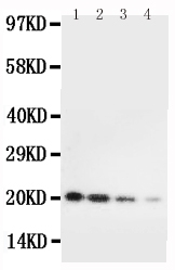 Anti-mouse IL-10 antibody, RP1015, Western blotting<br>Lane 1: Recombinant Mouse IL-10 Protein 10ng<br>Lane 2: Recombinant Mouse IL-10 Protein 5ng<br>Lane 3: Recombinant Mouse IL-10 Protein 2