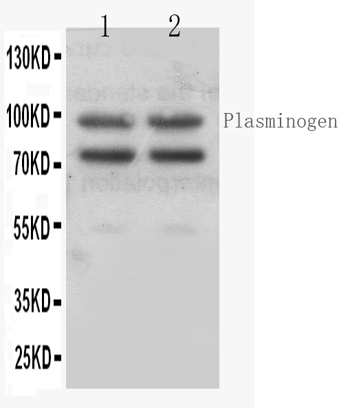 Figure 1. Western blot analysis of Angiostatin K1-3  using anti- Angiostatin K1-3  antibody (RP1027). <br> Electrophoresis was performed on a 5-20% SDS-PAGE gel at 70V (Stacking gel) / 90V (Resolving gel) for 2-3 hours. The sample well of each lane was loaded with 50ug of sample under reducing conditions. <br> Lane 1: SMMC7721 whole cell lysates,  Lane 2: HEPG2 whole cell lysates. <br> After Electrophoresis, proteins were transferred to a Nitrocellulose membrane at 150mA for 50-90 minutes. Blocked the membrane with 5% Non-fat Milk/ TBS for 1.5 hour at RT. The membrane was incubated with rabbit anti- Angiostatin K1-3  antigen affinity purified polyclonal antibody (Catalog # RP1027) at 0.5 μg/mL overnight at 4°C, then washed with TBS-0.1%Tween 3 times with 5 minutes each and probed with a goat anti-rabbit IgG-HRP secondary antibody at a dilution of 1:10000 for 1.5 hour at RT. The signal is developed using an Enhanced Chemiluminescent detection (ECL) kit (Catalog # EK1002) with Tanon 5200 system. A specific band was detected for Angiostatin K1-3  at approximately 95KD. The expected band size for Angiostatin K1-3  is at 95KD.