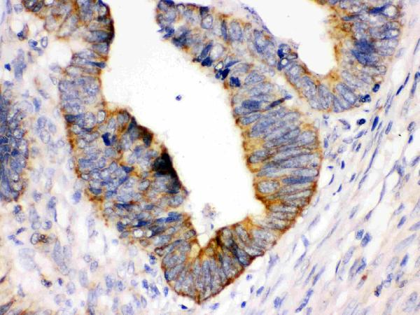 GST3/GST Pi was detected in paraffin-embedded sections of human intestinal cancer tissues using rabbit anti- GST3/GST Pi Antigen Affinity purified polyconal antibody (Catalog # PB 9184) at 1 μg/mL. The immunohistochemical section was developed using Super Vision Assay method (Catalog # SV0002).