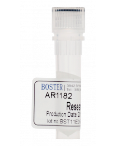 Broad Spectrum Protease Inhibitor Cocktail (100x)