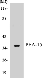 Western blot analysis of extracts from Jurkat cells