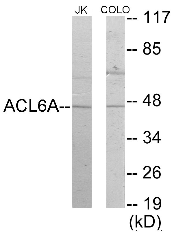 Western blot analysis of extracts from Jurkat/COLO205 cells