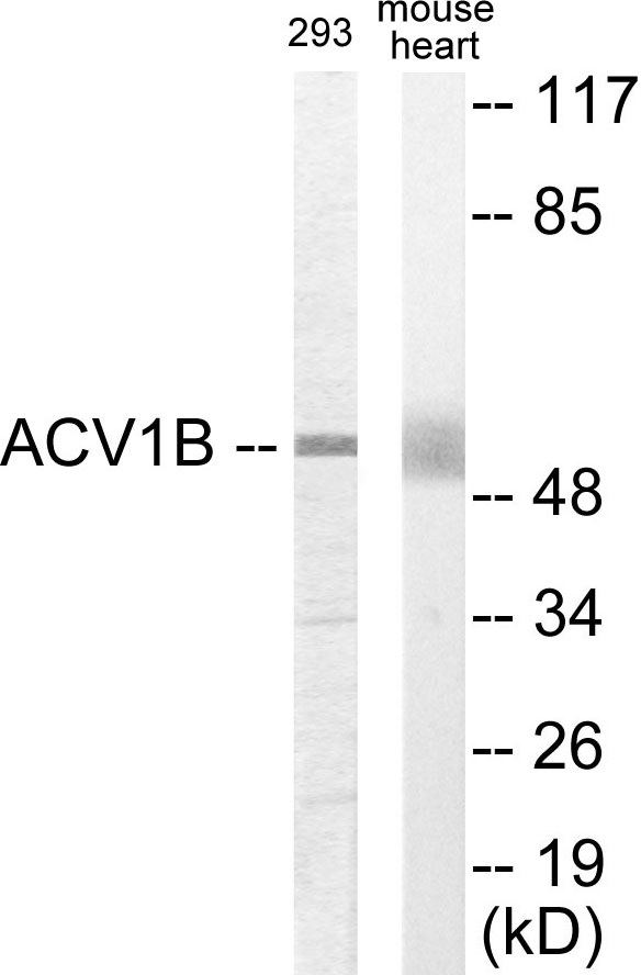 Western blot analysis of extracts from 293/mouse liver cells