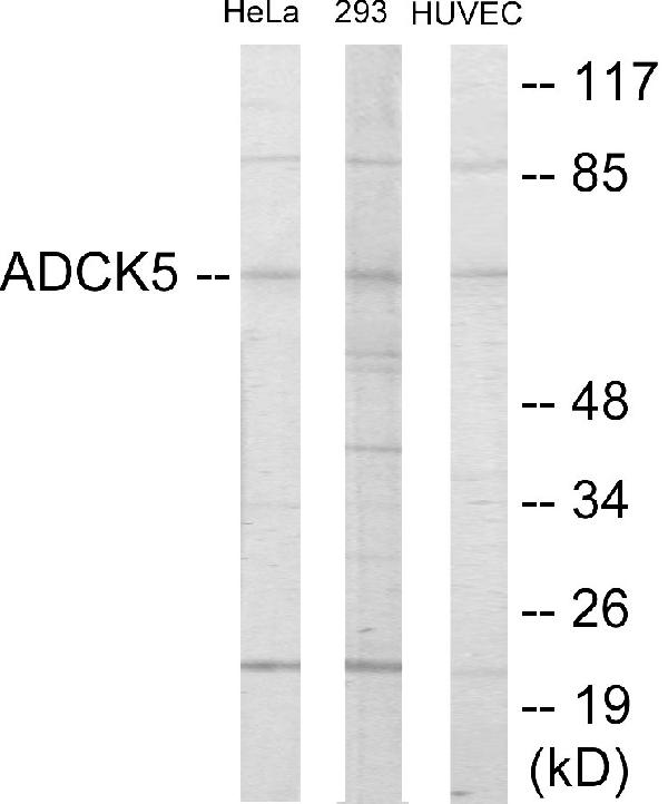 Western blot analysis of extracts from HeLa/293/HuvEc cells