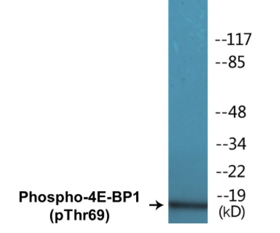 Western blot analysis of extracts from Jurkat cells treated with EGF 200ng/ml 30'