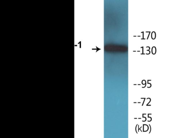 Western blot analysis of extracts from COS7 cells treated with Calyculin A 50ng/ml 30'