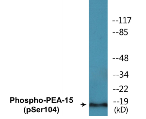 Western blot analysis of extracts from COS7 cells treated with TNF 20ng/ml 5'