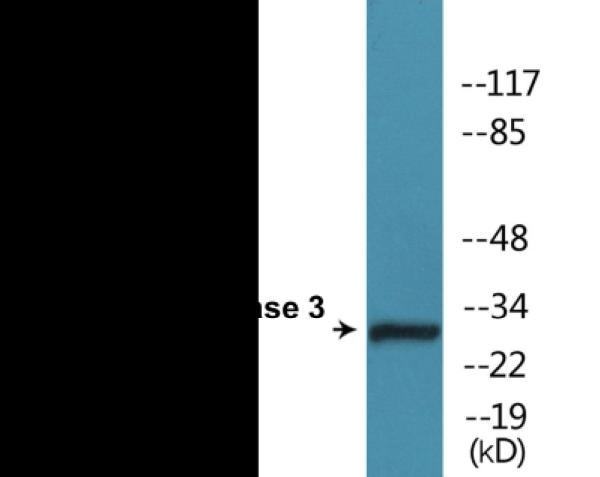 Western blot analysis of extracts from Jurkat cells treated with Etoposide 25uM 60'