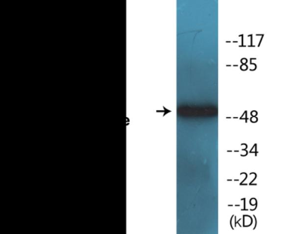 Western blot analysis of extracts from Jurkat cells and HepG2 cells