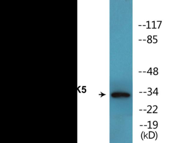 Western blot analysis of extracts from COS7 cells treated with EGF 200ng/ml 30' and 293 cells treated with H2O2 100u