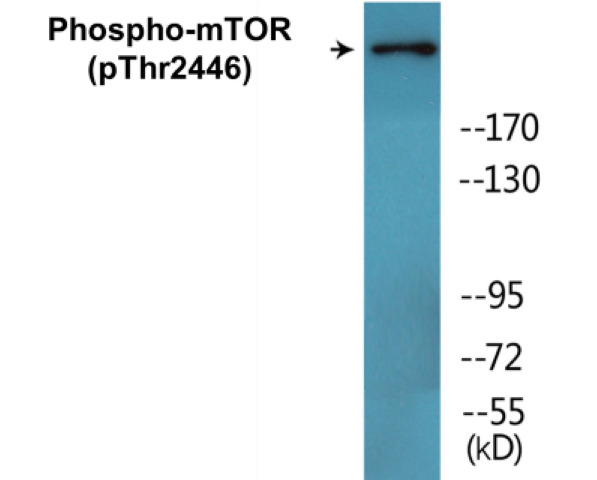 Western blot analysis of extracts from NIH-3T3 cells treated with Insulin 0.01U/ml 15'