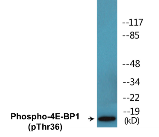 Western blot analysis of extracts from MDA-MB-435 cells treated with EGF 200ng/ml 30'