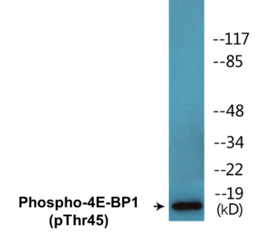 Western blot analysis of extracts from MDA-MB-435 cells treated with EGF 200ng/ml 5'