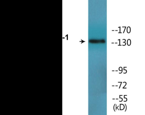 Western blot analysis of extracts from HepG2 cells