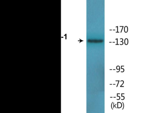 Western blot analysis of extracts from 293 cells and COLO205 cells